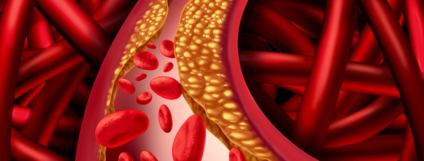 NATURACTIN Understanding Cholesterol, Risk Factors And Best Practices To Fight Complications